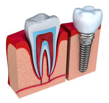 Zahnarzt Popovici, Zahnimplantate